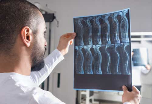 Doctor looking at spinal x-ray Fort Myers spine injury treatment concept